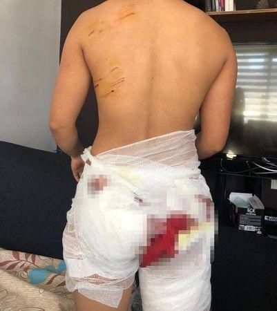 Spor yapan kadına köpek sürüsü saldırdı
