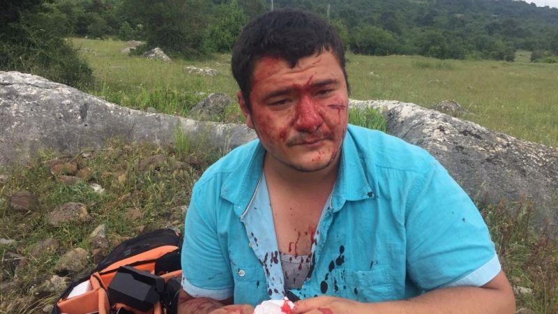 İHA muhabiri vahşice dövüldü
