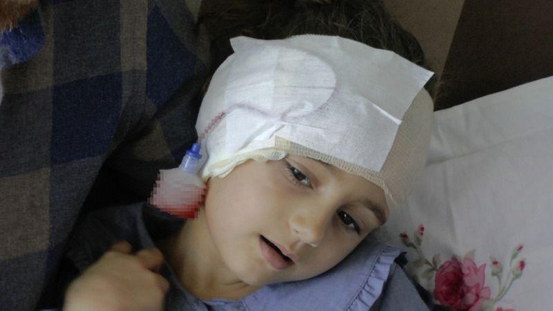 Çocuğun kafasına 4 saatlik ameliyatta 300 dikiş atıldı