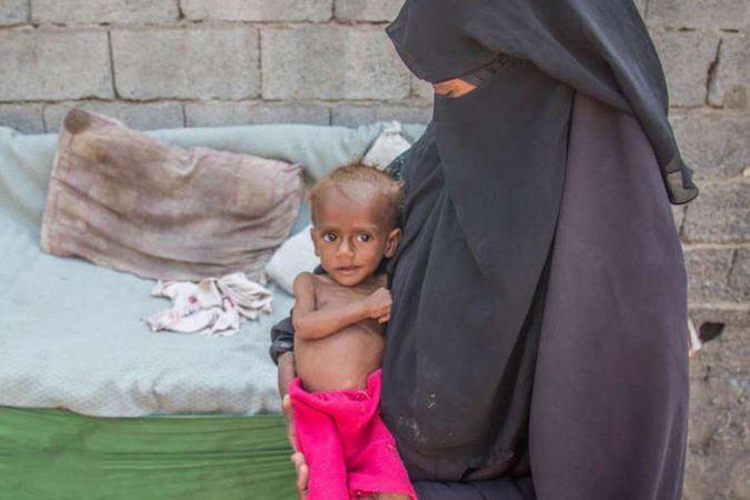 BM'den Yemen'e 50 milyon dolarlık acil yardım