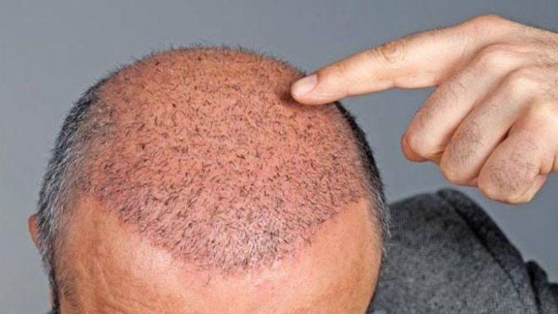 Dinimizce saç ektirmek günah mı?