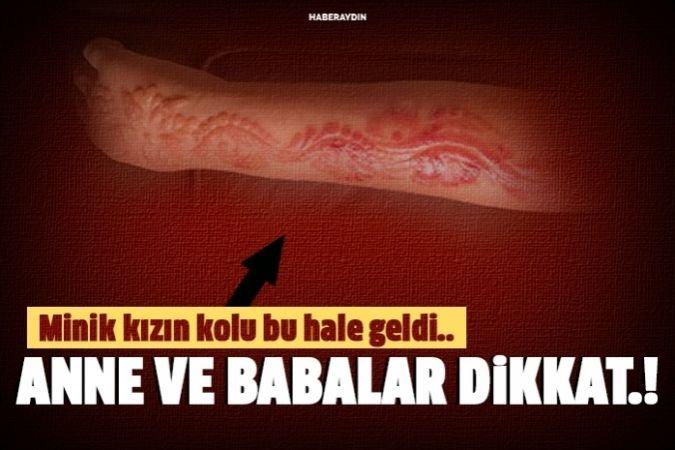 Hint kınası 7 yaşındaki küçük kızı hastanelik etti !