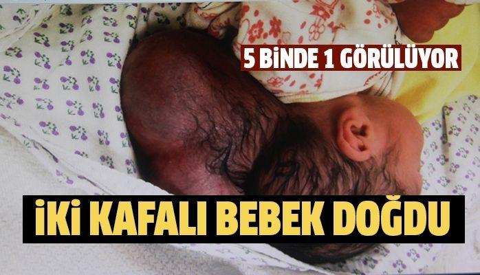 İki kafalı bebek doğdu