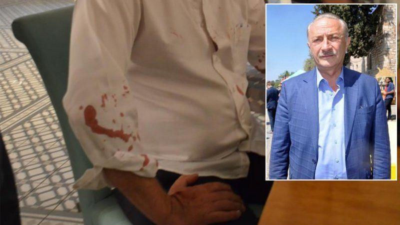 Didim Belediye Başkanı Atabay'a saldırıda yeni gelişme