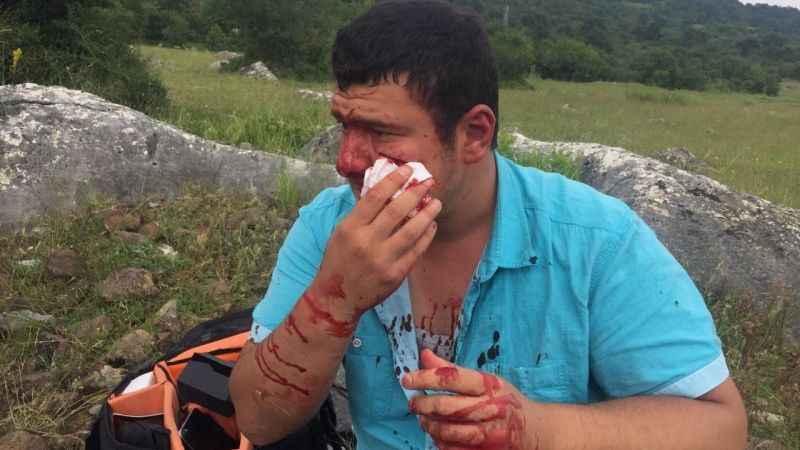 İHA Muhabiri Uslu: Yere yattım fakat tekmelemeye devam ettiler