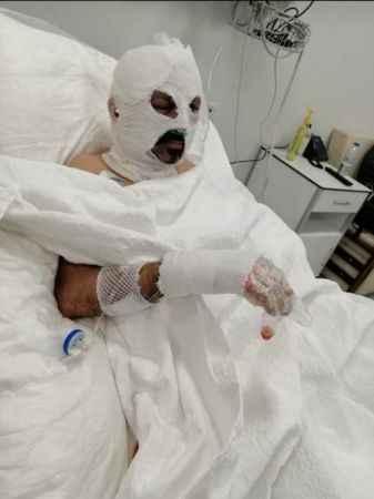 Zonguldak'ta Akılalmaz olay! Şoförün üzerine tiner döküp yaktı...