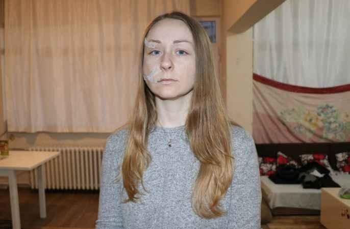 Boşanma aşamasındaki eşinin falçatayla yüzünden yaraladığı kadın, kocasına en ağır cezayı istiyor