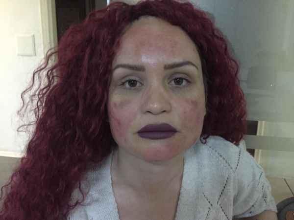 Kocaeli'de leke tedavisi sonrası yüzünde yanıklar oluşan kadın güzellik merkezinden şikayetçi oldu