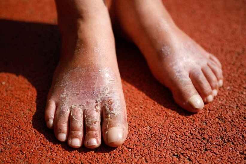Ucuz diye aldığı 30 liralık ayakkabı yüzünden yaralar oluştu! Ayağından parçalar alınacak