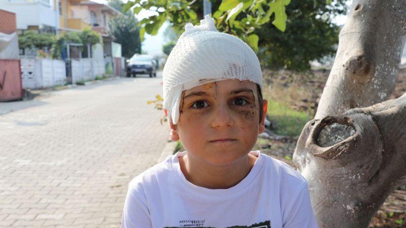 Çoban köpeğinin saldırdığı çocuğun kafasına 52 dikiş atıldı