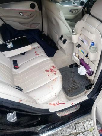 Gelecek Partili Özdağ'a silahlı sopalı saldırı