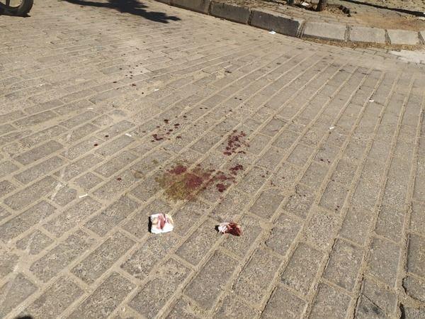Aydın'da kanlı kavga