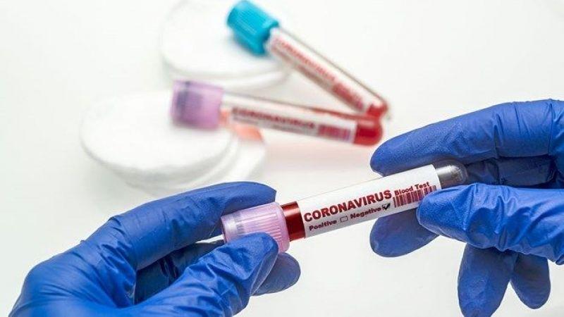Koronavirüs tablosu açıklandı