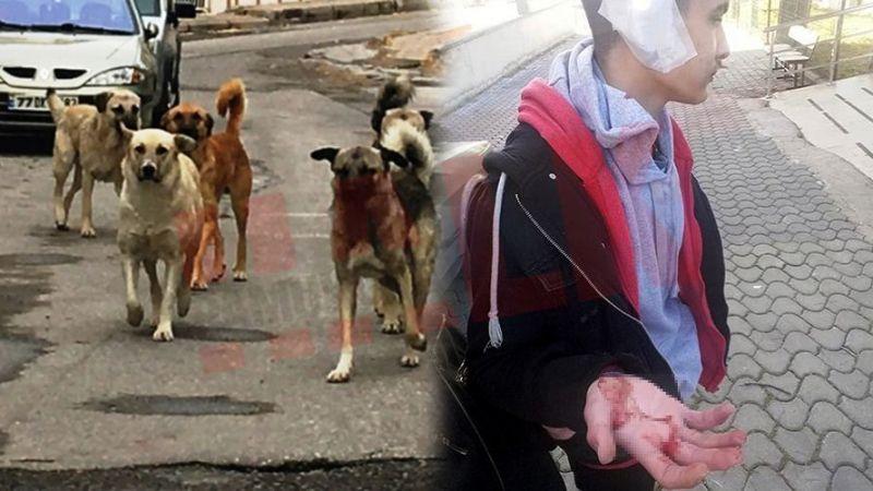 Pamukova'da başıboş sokak köpekleri lise öğrencilerine saldırdı!