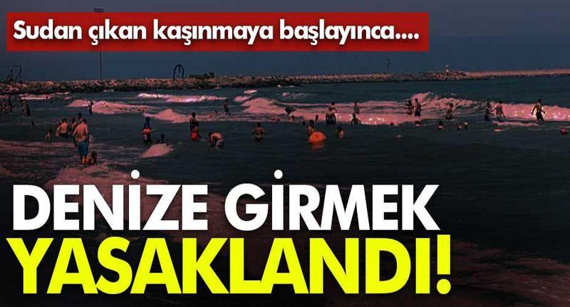Karasu'da sudan çıkan kaşınmaya başlayınca denize girmek yasaklandı!