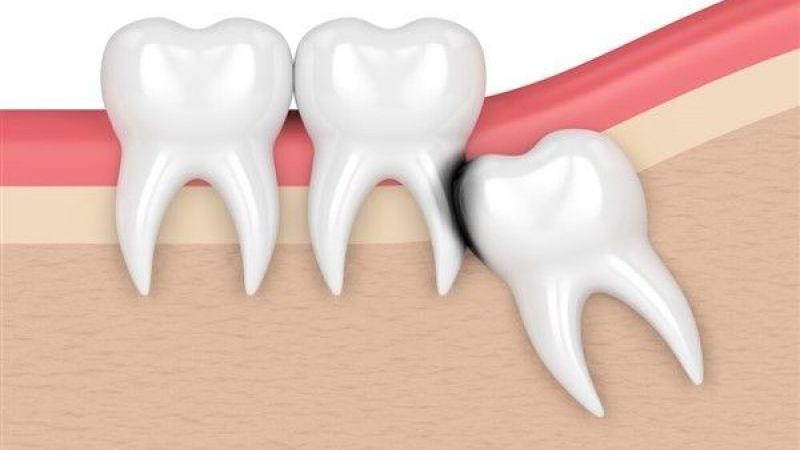 20 yaş diş problemi kâbus oluyor