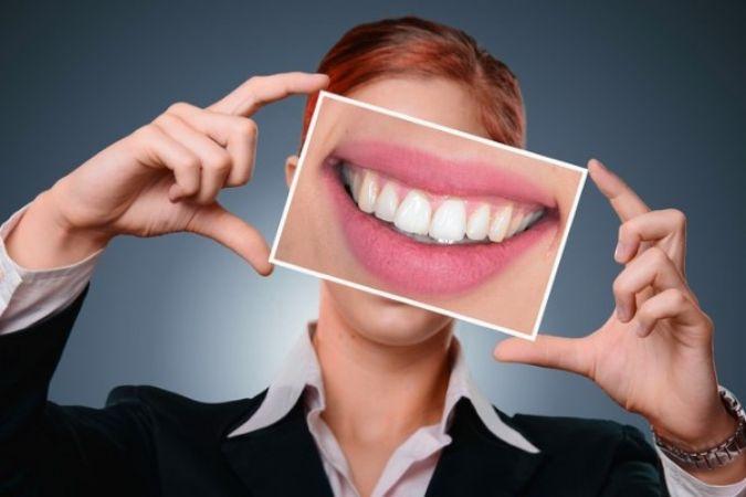 Diş sararması sebeplerine dikkat edilmeli