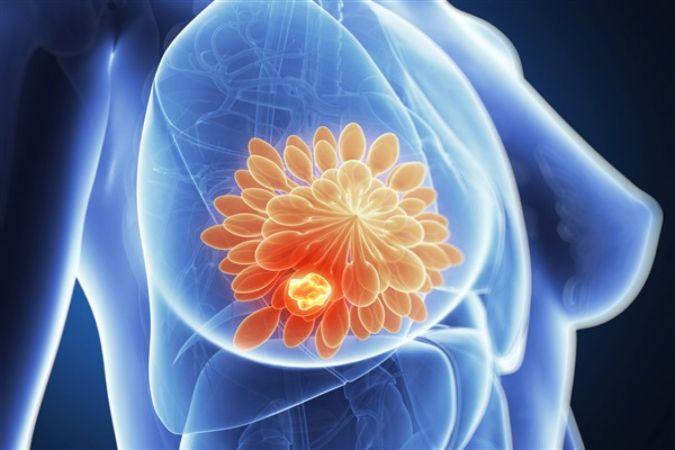 Meme kanserinde erken teşhis hem hayat hem organ kurtarıyor