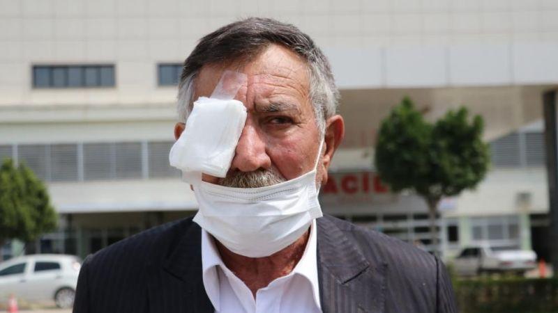 Adana'da tuvalet parası gözünden etti