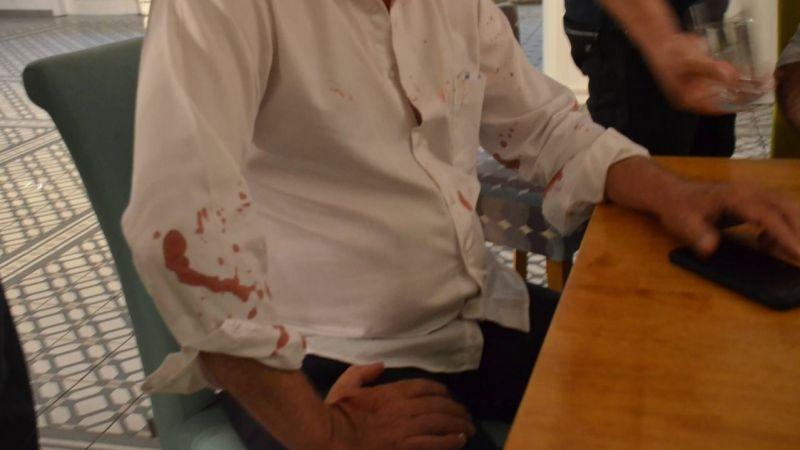 CHP'li Didim Belediye Başkanına beyzbol sopası ile saldırdılar