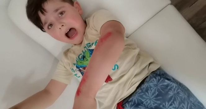 5 yaşındaki çocuk macera parkında ölümden döndü
