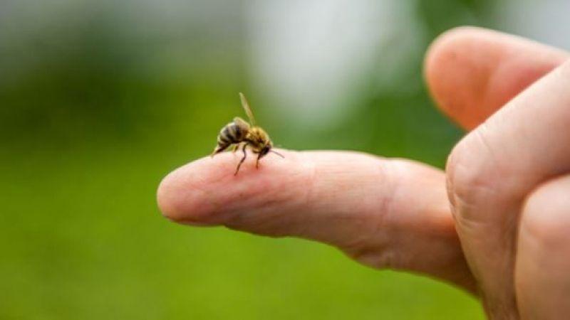Arı Sokması Ölüme Neden Olur Mu? Arı sokmasında ilk yapılacak tedavi nedir? Arı alerjisinin teşhisi nasıl konulur?