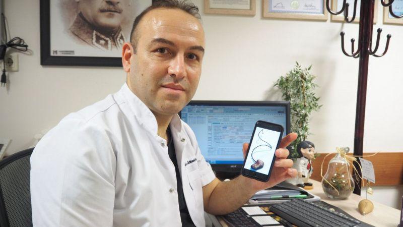 Aydın'da bir kişinin vücudunda kateter teli unutuldu! 5 yıl sonra çıkarıldı