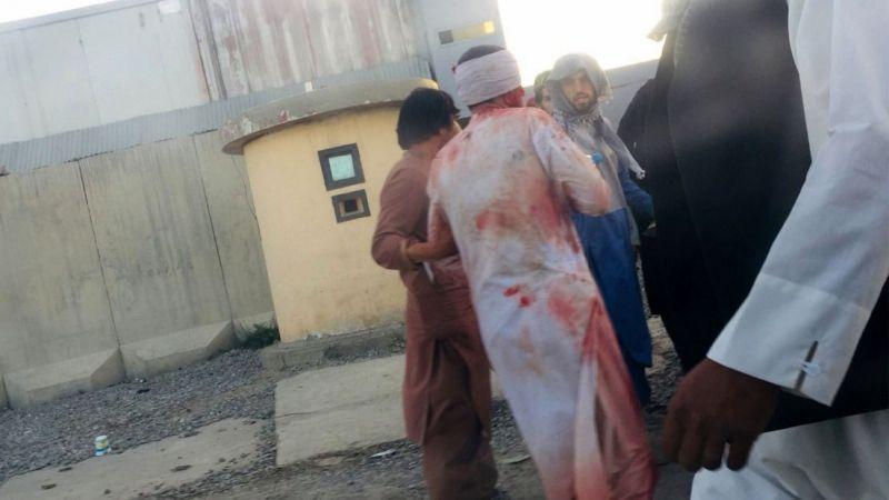 Bombalı saldırı: 72 ölü, 143 yaralı