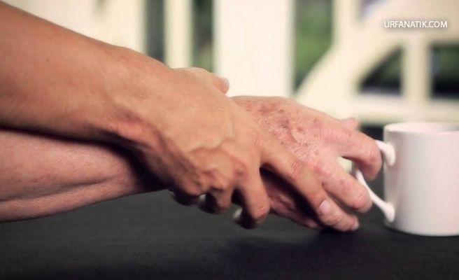 Parkinson Nedir? Tedavisi Nasıldır?