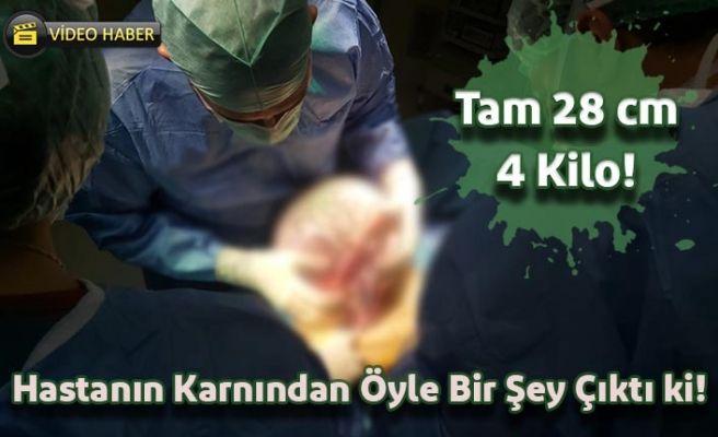 Suruç Devlet Hastanesinden Başarılı Operasyon!