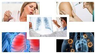 Zatürreye ne iyi gelir? Zatürre bulaşıcı mıdır, evde doğal tedavisi nasıl yapılır?