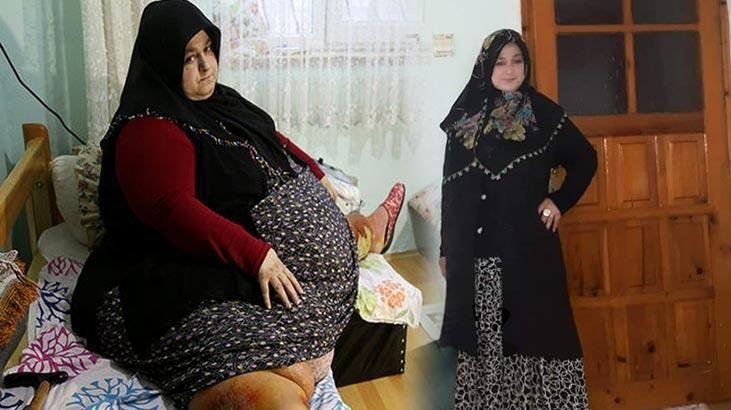 155 kilo zayıflamıştı; Aşı olmadı, koronaya yenildi