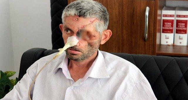 Hatay'da Diş Sağlığı Merkezi Skandalı