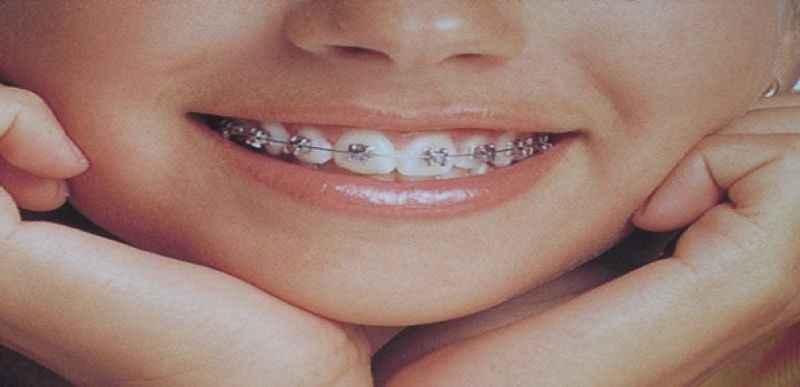 Diş teli kullananlar dikkat