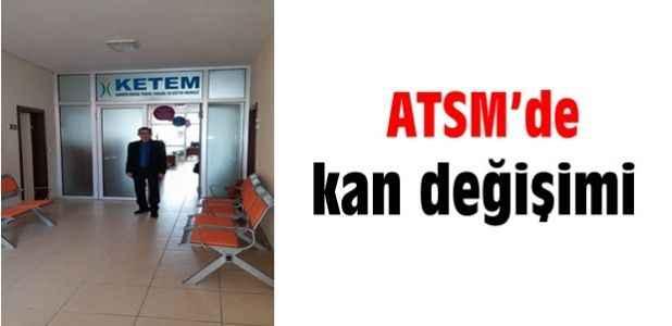 ATSM'de kan değişimi