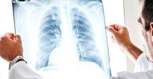 Bakanlık, kanser hastalarına ömür biçti, ortalık karıştı