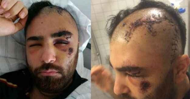 Türk genci öldüresiye dövdüler