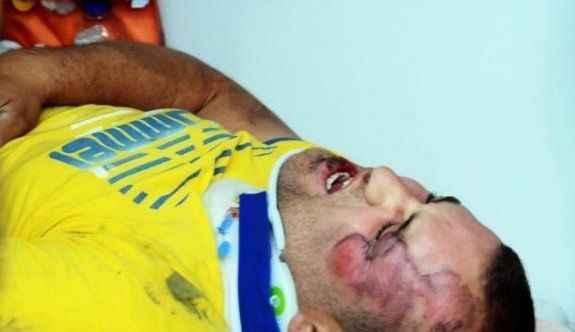 Kamyonetin altında kalan motosikletli ağır yaralandı