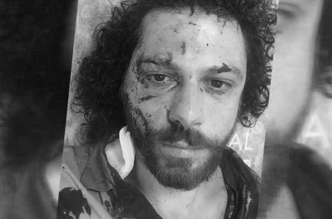 Bar saldırısında ünlü oyuncu Oral Özer yaralandı