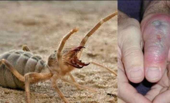 Alanya ve Gazipaşa dikkat! Bu böcek öldürebilir!
