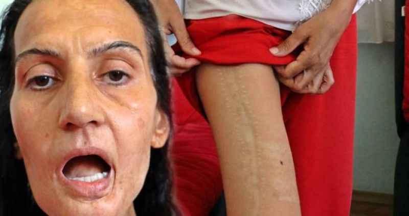 Antalya'da kocasının hasta diye terk ettiği kadına bacağından yeni dil yapıldı
