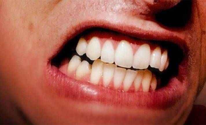 Uykuda diş sıkmaya dikkat