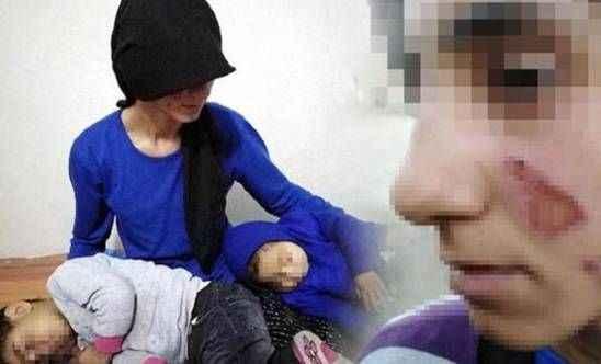 Böyle vahşet görülmedi! Eşinin ve 3 yaşındaki kızının yüzünü yaktı!