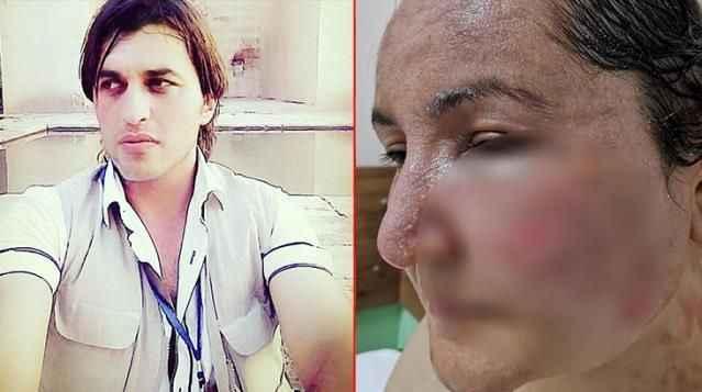 Eşinin yüzünü yaktığı kadın zor anlarını anlattı: 'Seni televizyona çıkaracağım' diyen kocası, bunu planlıyormuş