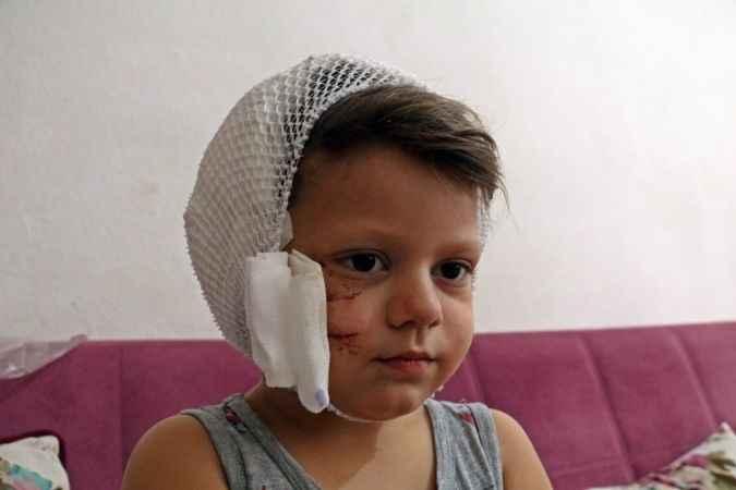 Korkutan olay! Antalya'da köpek saldırısına uğrayan çocuk, ölümden döndü