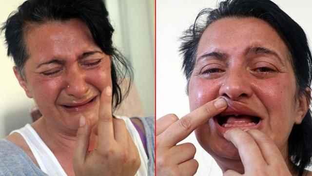 Antalya'da dişçi kabusu! Beyaz diş hayaliyle gittiği klinikten delirten hastalıkla çıktı