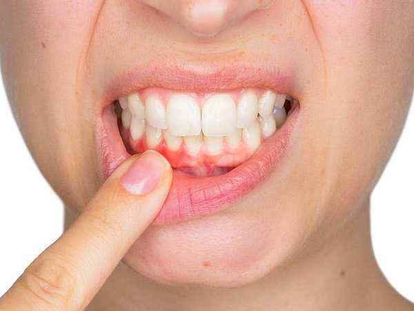 Ağız sağlığına dikkat! Diş etleriniz kanıyorsa...