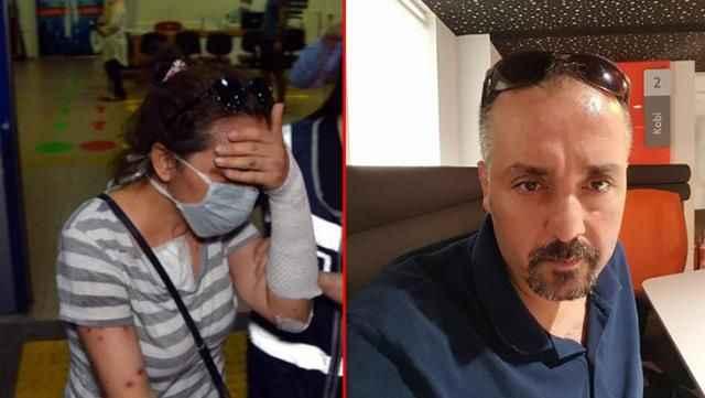 Eski kız arkadaşının yüzüne kezzap attığı talihsiz adam, evinde ölü bulundu