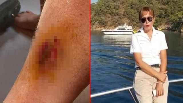 Tekne turunda denize giren kadın acılar içinde kaldı! Gerçeği çıkınca anladı