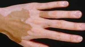 Addison hastalığı nedir? Semtomları nelerdir? Nasıl tedavi edilir? Edilmezse ne olur?